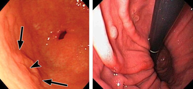 Upper Endoscopy Gastroscopy Sydney Obesity Centre